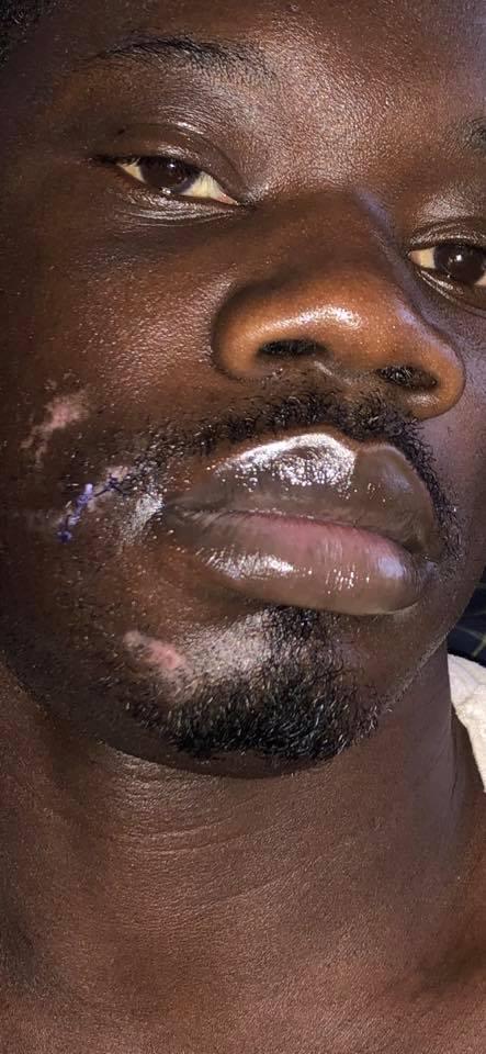 Guin Thieuss brise le silence après l'agression