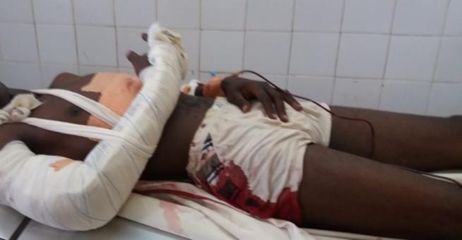 Université Assane Seck de Ziguinchor: L'étudiant Mamadou Ly blessé par balle blanche