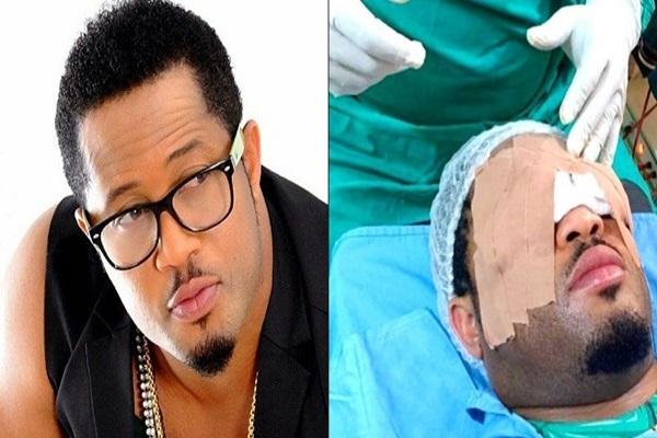 L'acteur nigérian Mike Ezuruonye a subi une chirurgie des yeux (photo)