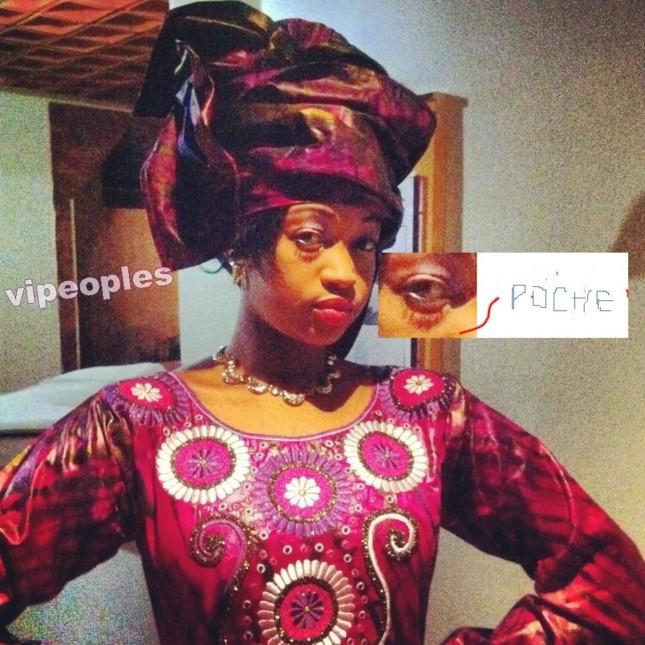 SOS! Poches sous les yeux de Dalanda Diallo!