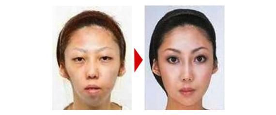 Un chinois attaque sa femme en justice pour lui avoir caché qu'elle était laide