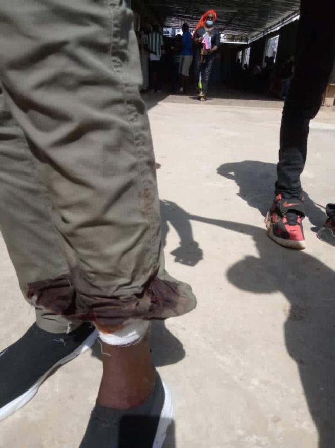 Affrontements à l'Ucad: un étudiant prend une balle dans la jambe, la lutte se poursuit aujourd'hui