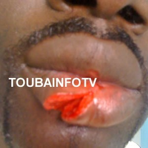Agression raciste d'un sénégalais en Tunisie