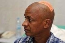 Guinée : Cellou Dalein Diallo frôle le pire, les forces de l'ordre tirent à balles réelles sur la foule