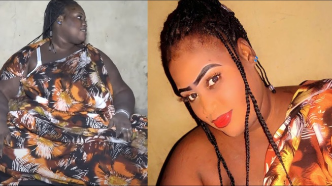 Affaire Fambaye : Macky Sall entre en jeu et prend en charge les frais d'opération à l'étranger