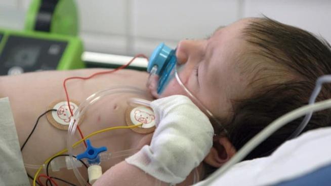 Les cas de bronchiolite en hausse: quels symptômes doivent alerter chez l'enfant?
