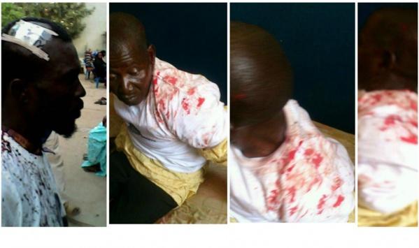 Gambie - Une manifestation pacifique d'opposants tourne au bain de sang : 12 blessés graves et 42 manifestants arrêtés