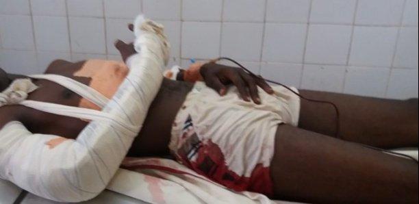 Saint-Louis : Un tailleur poignarde à mort un jeune avec une paire de ciseaux