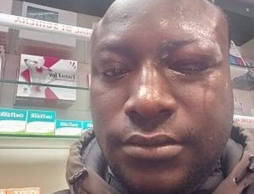 Italie : Le Sénégalais déjoue un cambriolage, perd un oeil et gagne des félicitations