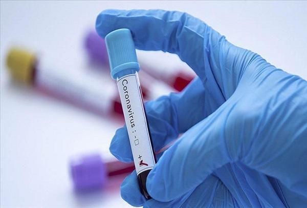 Pandémie de la COVID-19 : nouvellement affectée à Diourbel, une femme d'une trentaine d'année, testée positive