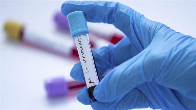 Covid-19 - Nouveaux symptômes, comment le virus a muté