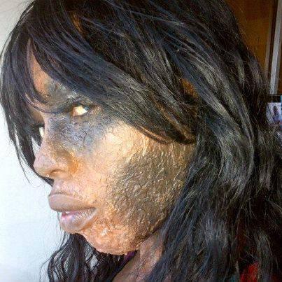 """Le """"Khessal"""" ( dépigmentation) brule littéralement le visage de cette jeune dame"""