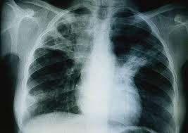 ALERTE - 336 cas de tuberculose enregistrés en 2013 á Kolda