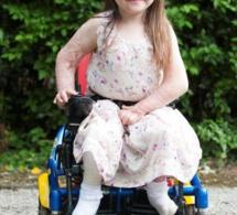 Brûlée vivante à 15 mois, elle fait ses premiers pas après 500 opérations et une amputation