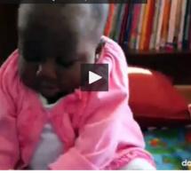 Côte d'Ivoire : cette petite fille est née avec 4 jambes et 2 colonnes vertébrales