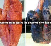 Attention danger: Les cigarettes light ont fait exploser le cancer du poumon