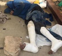 Un automobiliste heurte un malade mental, lui casse les deux jambes et s'enfuit.