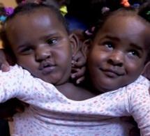 Père de jumelles siamoises : Ibrahima Ndiaye doit choisir la mort de l'une d'elles