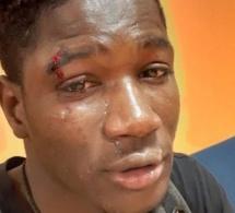 Italie : Agression raciste à Palerme, un Sénégalais battu et blessé