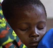 Pour avoir rendu aveugles ses deux belles-filles mineures: Seynabou Ndiaye, condamnée à 20 ans de travaux forcés