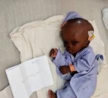 Appel à la solidarité : leur bébé souffrant d'hydrocéphalie dans l'attente d'une opération, une famille sollicite un soutien d'urgence