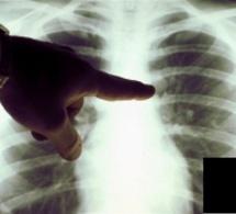 Tuberculose, Dakar tousse :au Sénégal, 44% des cas de tuberculose se trouvent dans la capitale