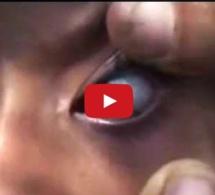 Une jeune fille Yéménite pleure des larmes de pierre (Vidéo)