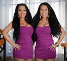 Elles dépensent 180 000 euros en chirurgie pour être identiques