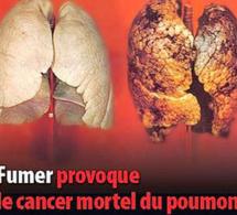 «Le Tabagisme Est L'une Des Plus Grandes Menaces Actuelles Pour La Santé Mondiale» (Rapport CRES)